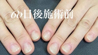 深爪矯正コース(60日後ビフォーアフター)