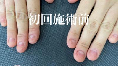 深爪矯正コース(初回ビフォーアフター)